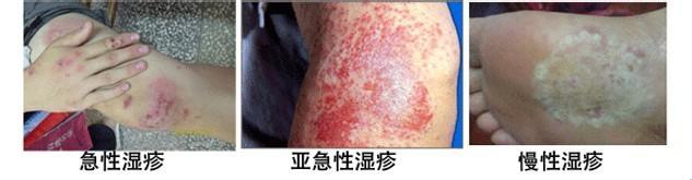 怎么样减轻湿疹的症状