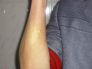 琼海手臂上的白癜风如何治疗?琼海医生来说说
