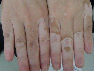 手足部位的白斑去海口中山医院怎么治