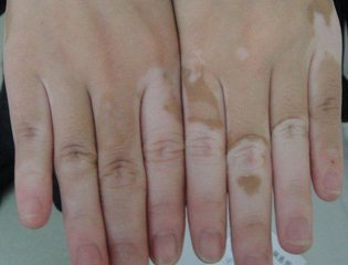 手指白癜风怎么治疗 海口白癜风医院