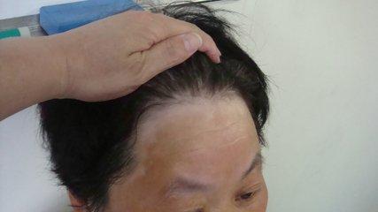 东方白癜风长在头部应该怎么护理呢