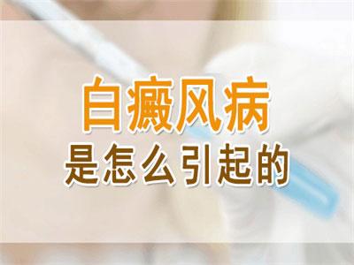 东方治疗白癜风医院资深专家解析:白斑是怎么回事?