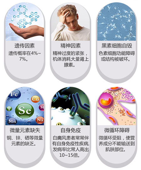 白癜风的常见病因一般都有哪些?