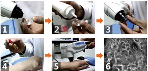 美国三维皮肤CT检测系