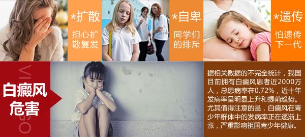 海南地区儿童白癜风怎么治疗