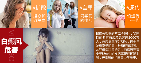 儿童患局限性白癜风有什么危害?