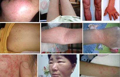 皮肤过敏有哪些因素引起的