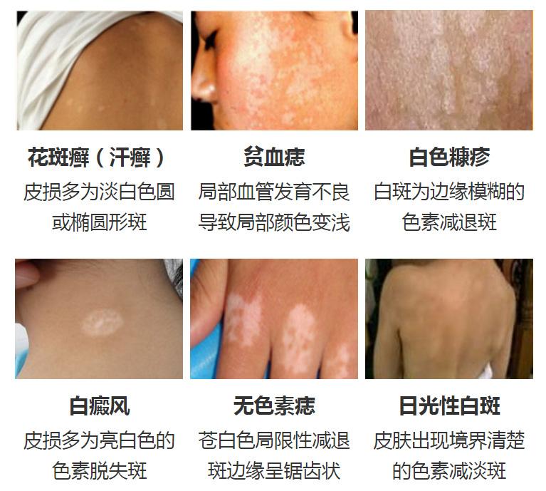 正确区分!4种易于白癜风混淆的皮肤病