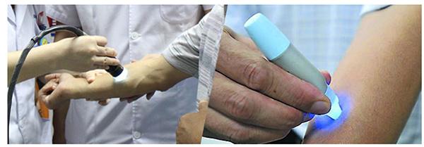 海口白癜风医院专家对治疗白癜风的看法