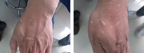 三亚白癜风患者说治疗期间又长出新白斑是怎么回事