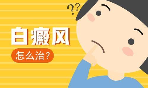海口白癜风患者染头能行吗